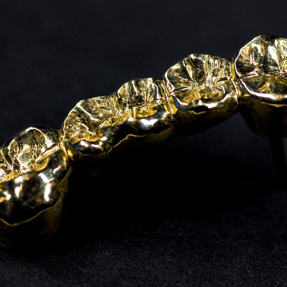Dentalgold